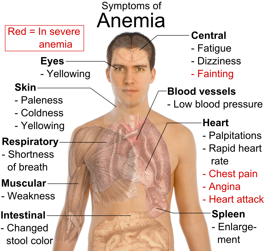 What Causes Iron-Deficiency Anemia?