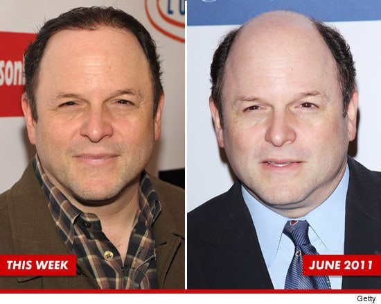 Balding And What Jason Alexander Is Doing About His Hair