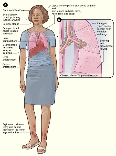 immune system and the disease sarcoidosis People with sarcoidosis can have depression that is unrelated to the activity of the disease and is felt to be, in part, because of a misdirected immune system symptoms can appear suddenly and then disappear.