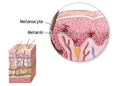 skin with melanocytes